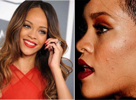 Brufoli sul viso: la guida anti-imperfezioni (II parte)
