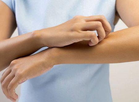 Trattamento cosmetico della dermatite atopica preventivo e lenitivo
