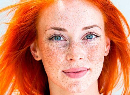 Macchie della pelle: cause e prevenzione delle discromie cutanee