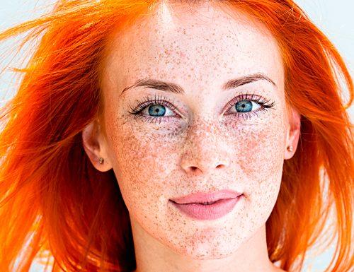 Macchie della pelle: le cause delle discromie cutanee