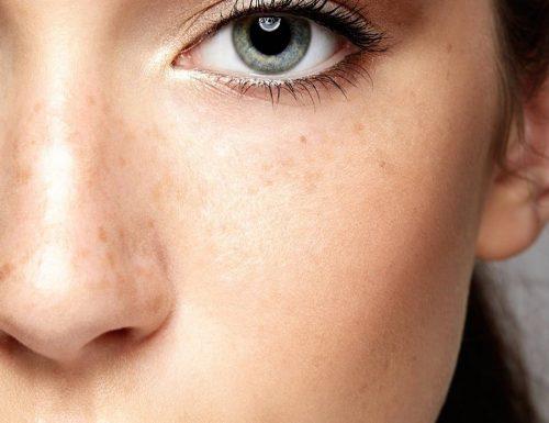 Macchie della pelle: possono essere trattate tutte allo stesso modo? Perché la crema schiarente non funziona?