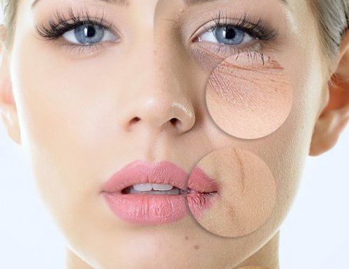 Come idratare e nutrire la pelle molto secca in inverno