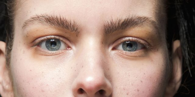 rughe sottili sotto gli occhi