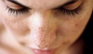 trattamento cosmetico delle macchie della pelle