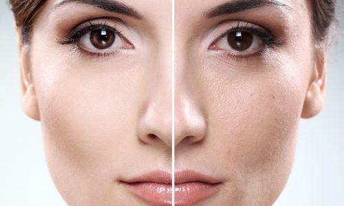 Brufoli sul viso: trucco correttivo