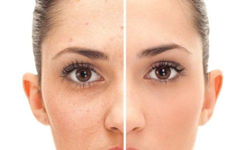 Macchie rosse o scure lasciate dai brufoli: i cosmetici da usare per ridurle