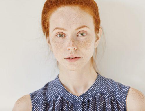 Macchie della pelle, cosa sono e quanti tipi di iperpigmentazione esistono